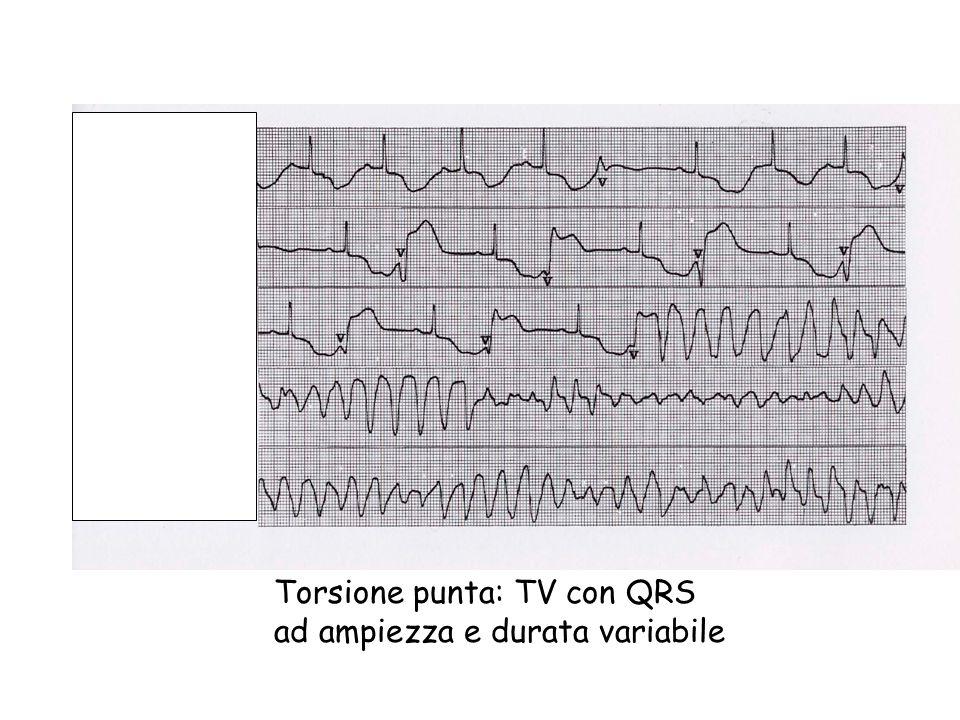 Torsione punta: TV con QRS ad ampiezza e durata variabile