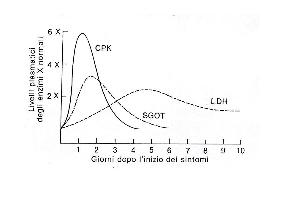 ECG - onda di lesioneinteressa ST * ST sopraslivellato se sottoepicardico * ST sottoslivellato se sottoendocardico (speculare in derivazioni opposte) - onda di necrosiQ nelle derivazioni prospicenti * caratteristiche di onda Q - D1: > 2 mm e > 25% di R - aVL: > 2 mm e > 50% di R - D2 e aVF: > 2 mm e > 25% di R - V5 e V6: > 2 mm e > 15% di R - D3:--> non modificata da inspirio --> > 6 mm --> presente anche in D2 aVF --> S in D1 attenzione: onda Q compare se transmurale o sottoepicardico (se sottoendocardico non c e Q)