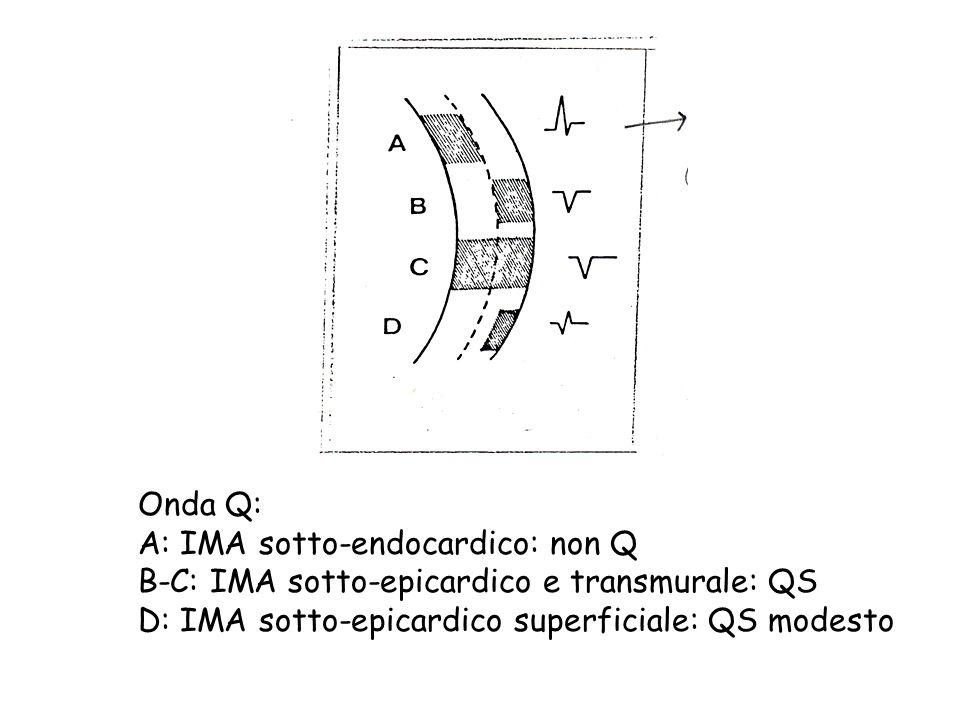 Onda Q: A: IMA sotto-endocardico: non Q B-C: IMA sotto-epicardico e transmurale: QS D: IMA sotto-epicardico superficiale: QS modesto