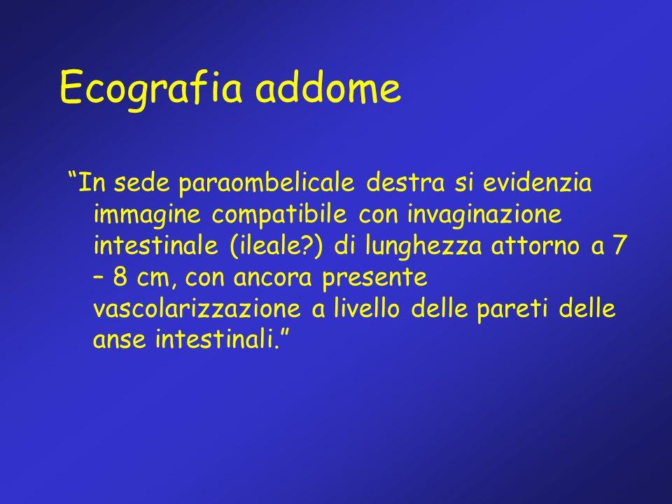Ecografia addome In sede paraombelicale destra si evidenzia immagine compatibile con invaginazione intestinale (ileale?) di lunghezza attorno a 7 – 8