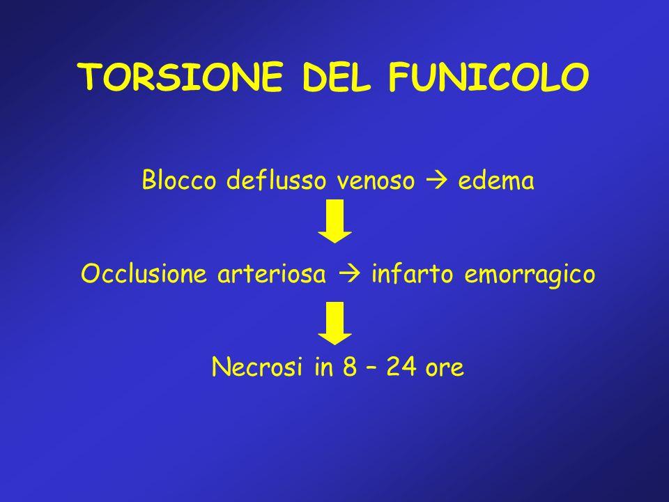 TORSIONE DEL FUNICOLO Blocco deflusso venoso edema Occlusione arteriosa infarto emorragico Necrosi in 8 – 24 ore