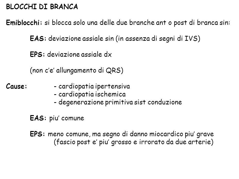 BLOCCHI DI BRANCA Emiblocchi: si blocca solo una delle due branche ant o post di branca sin: EAS: deviazione assiale sin (in assenza di segni di IVS)