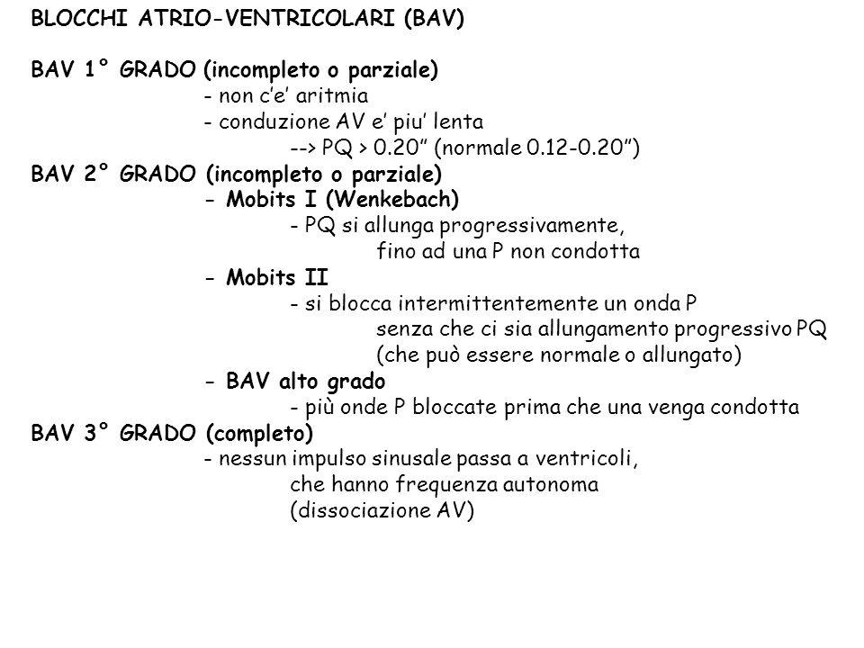 BLOCCHI ATRIO-VENTRICOLARI (BAV) BAV 1° GRADO (incompleto o parziale) - non ce aritmia - conduzione AV e piu lenta --> PQ > 0.20 (normale 0.12-0.20) B