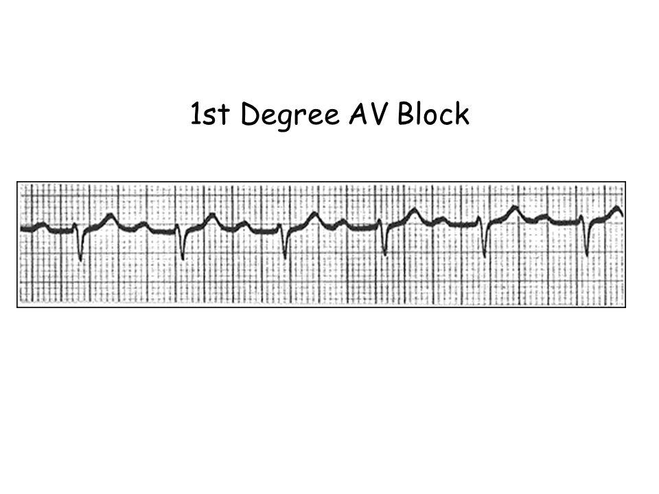 1st Degree AV Block