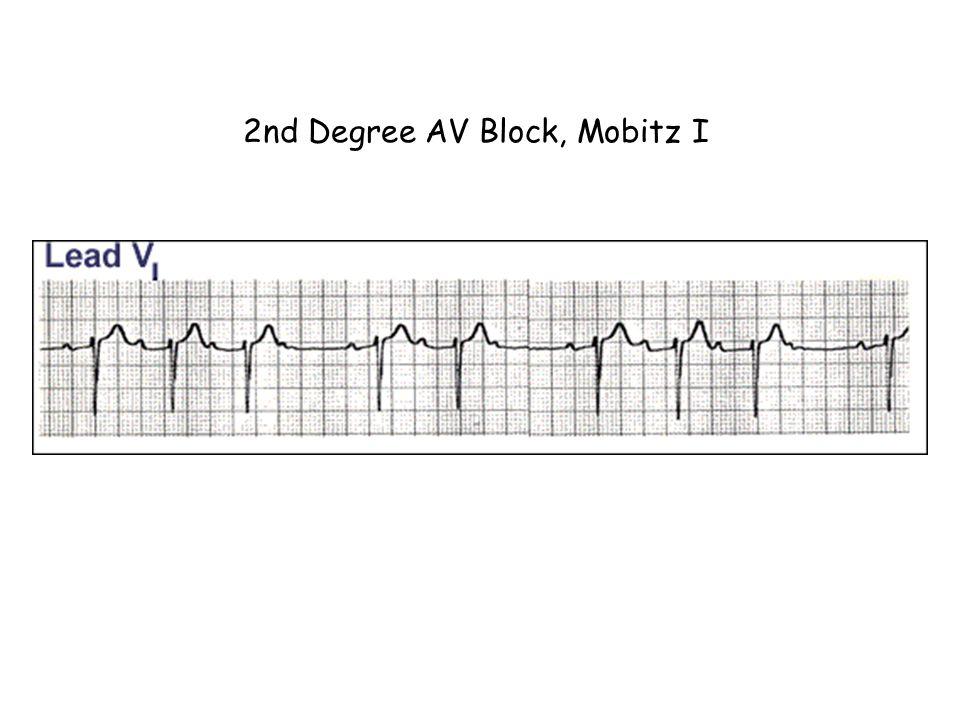 2nd Degree AV Block, Mobitz I