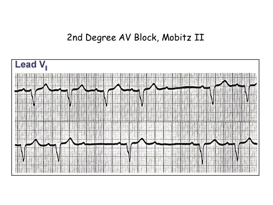 BAV completo: Dissociazione AV (pacemakers autonomi nodo seno e ventricoli)