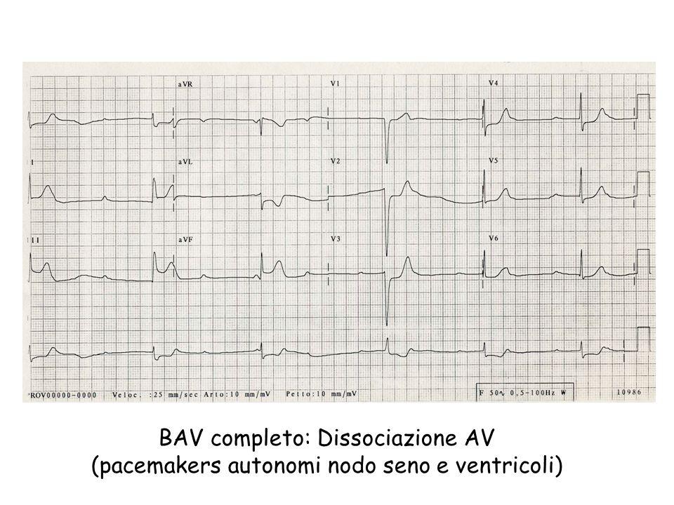 BLOCCHI ATRIO-VENTRICOLARI (BAV) CAUSE CLINICHE - Stimolazione vagale (seno carotideo o Valsalva) - Cardiopatia ischemica (acuta o cronica) - Miocardiopatie idiopatiche - Miocardiopatie secondarie (infiltrazione in caso di Amiloidosi Emocromatosi Collagenopatie - lupus - dermatomiosite, - sclerodermia - Miocarditi - Valvulopatie - Farmaci- Digitale - Chinidina, procainamide - Ca Antagonisti (verapamide, diltiazem)