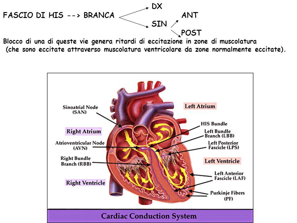 BLOCCHI DI BRANCA Caratteristiche di ECG 1 - Allargamento del QRS > 0.12 2 - Ritardo della deflessione intrinseca 3 - Spostamento asse elettrico verso lato bloccato 4 - Modifiche della T, che ha direzione opposta a QRS (Nota!ischemia cardiaca non e diagnosticabile se ce BB!) Diagnosi di BB si fa prevalentemente su derivazioni precordiali