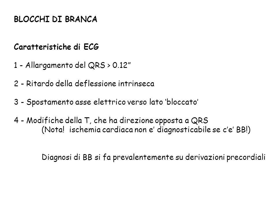 BLOCCHI DI BRANCA Caratteristiche di ECG 1 - Allargamento del QRS > 0.12 2 - Ritardo della deflessione intrinseca 3 - Spostamento asse elettrico verso