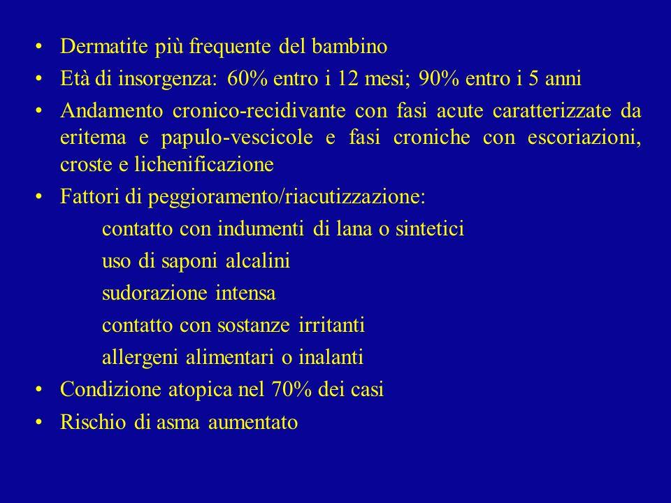 Dermatite più frequente del bambino Età di insorgenza: 60% entro i 12 mesi; 90% entro i 5 anni Andamento cronico-recidivante con fasi acute caratteriz