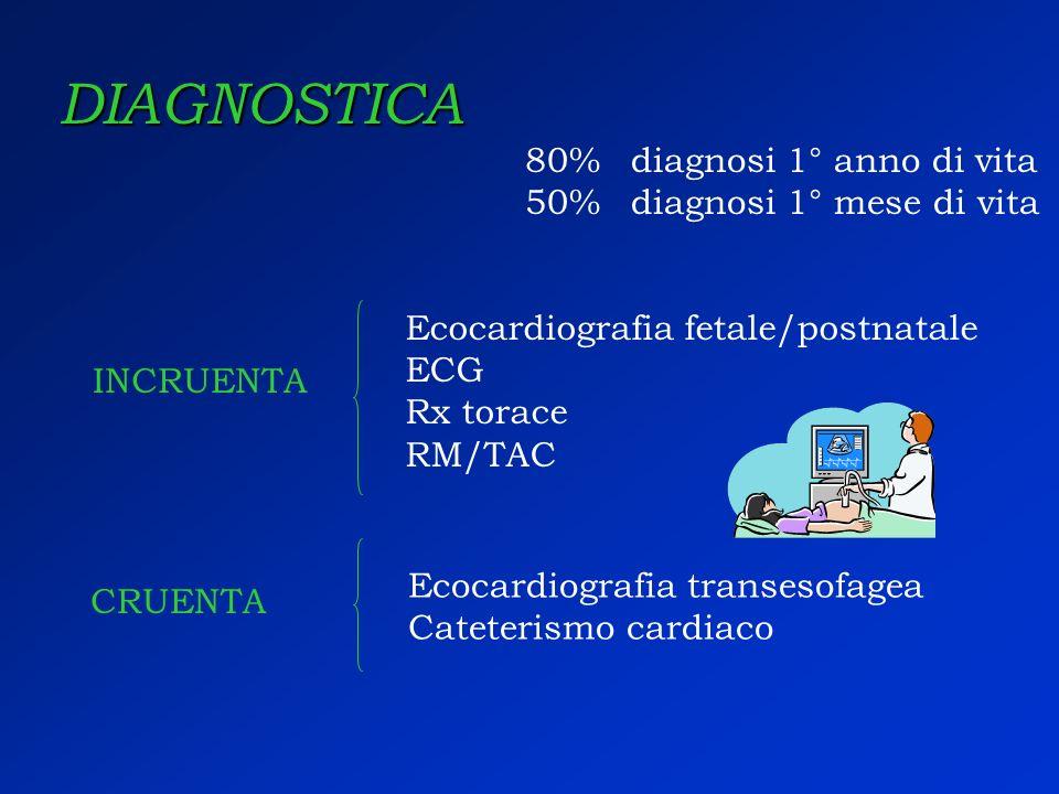 DIAGNOSTICA 80%diagnosi 1° anno di vita 50%diagnosi 1° mese di vita INCRUENTA Ecocardiografia fetale/postnatale ECG Rx torace RM/TAC CRUENTA Ecocardio