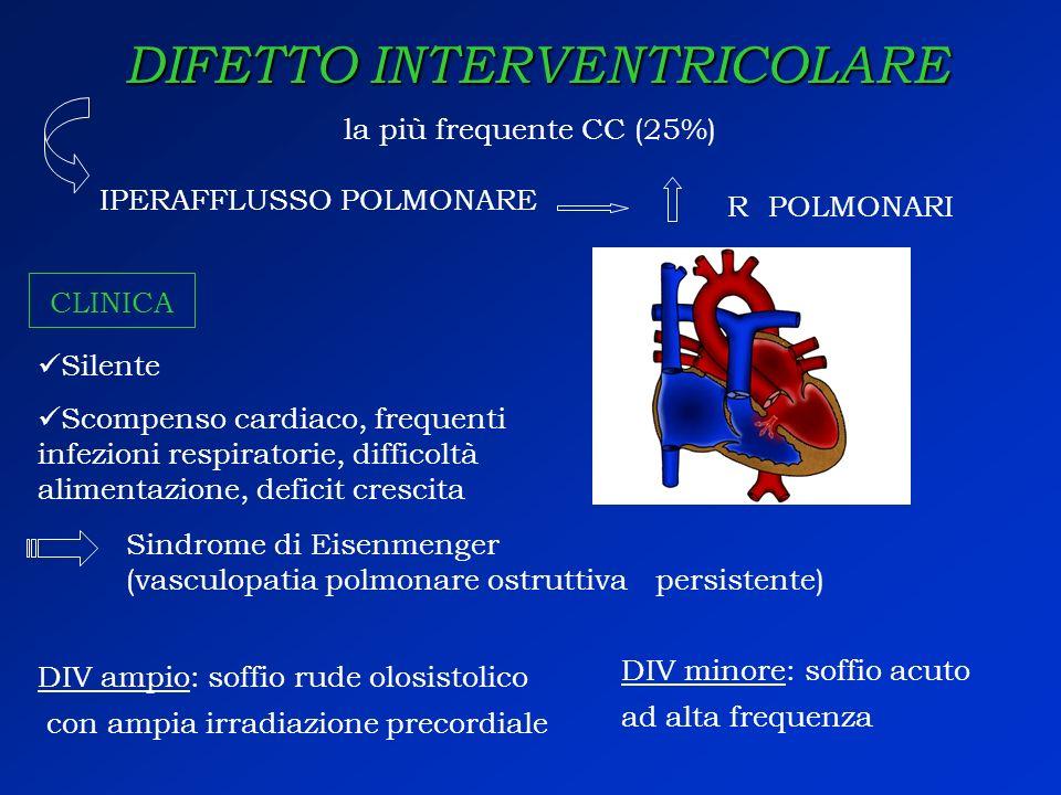 DIFETTO INTERVENTRICOLARE Silente Scompenso cardiaco, frequenti infezioni respiratorie, difficoltà alimentazione, deficit crescita la più frequente CC