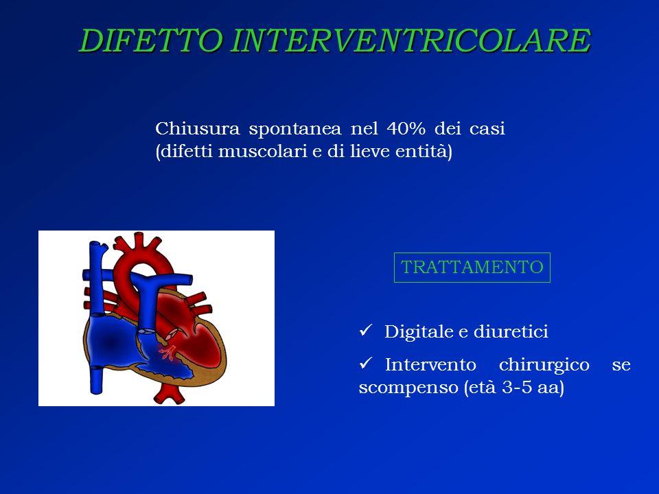 DIFETTO INTERVENTRICOLARE Chiusura spontanea nel 40% dei casi (difetti muscolari e di lieve entità) Digitale e diuretici Intervento chirurgico se scom