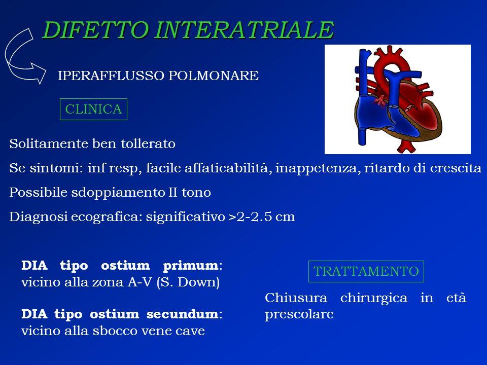 DIFETTO INTERATRIALE DIA tipo ostium primum : vicino alla zona A-V (S. Down) IPERAFFLUSSO POLMONARE DIA tipo ostium secundum : vicino alla sbocco vene