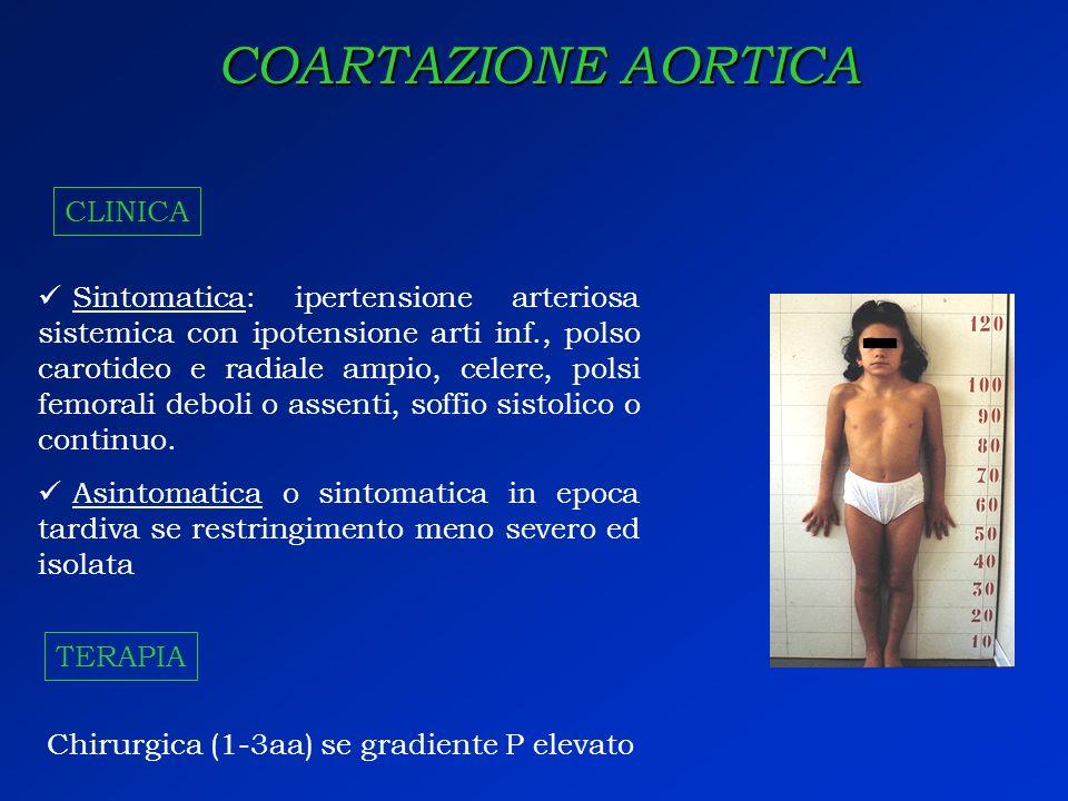 COARTAZIONE AORTICA Sintomatica: ipertensione arteriosa sistemica con ipotensione arti inf., polso carotideo e radiale ampio, celere, polsi femorali d