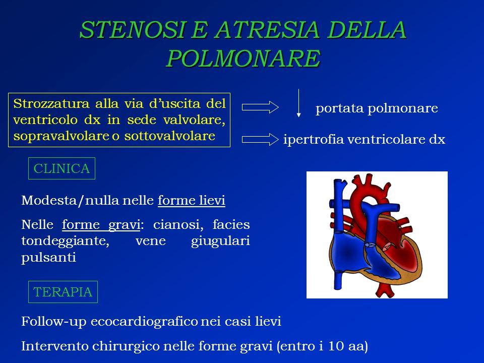 STENOSI E ATRESIA DELLA POLMONARE Strozzatura alla via duscita del ventricolo dx in sede valvolare, sopravalvolare o sottovalvolare CLINICA portata po