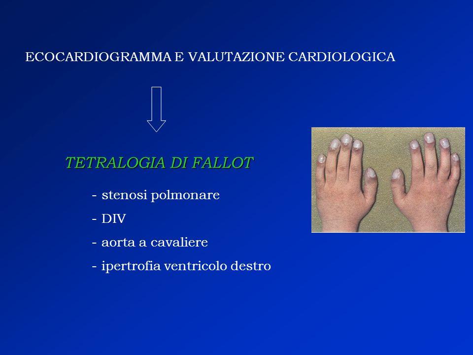 ECOCARDIOGRAMMA E VALUTAZIONE CARDIOLOGICA - stenosi polmonare - DIV - aorta a cavaliere - ipertrofia ventricolo destro TETRALOGIA DI FALLOT