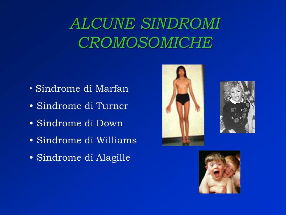 ALCUNE SINDROMI CROMOSOMICHE Sindrome di Marfan Sindrome di Turner Sindrome di Down Sindrome di Williams Sindrome di Alagille