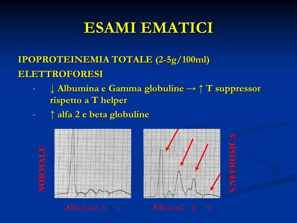 Alb NORMALE S.NEFROSICA ESAMI EMATICI IPOPROTEINEMIA TOTALE (2-5g/100ml) ELETTROFORESI Albumina e Gamma globuline T suppressor rispetto a T helper Albumina e Gamma globuline T suppressor rispetto a T helper alfa 2 e beta globuline alfa 2 e beta globuline