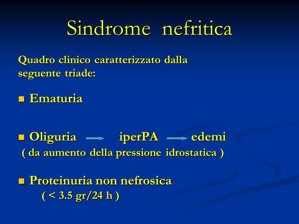 Quadro clinico caratterizzato dalla seguente triade: Ematuria Ematuria Oliguria iperPA edemi Oliguria iperPA edemi ( da aumento della pressione idrostatica ) ( da aumento della pressione idrostatica ) Proteinuria non nefrosica Proteinuria non nefrosica ( < 3.5 gr/24 h ) ( < 3.5 gr/24 h )