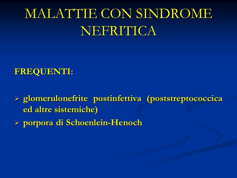 MALATTIE CON SINDROME NEFRITICA FREQUENTI: glomerulonefrite postinfettiva (poststreptococcica ed altre sistemiche) glomerulonefrite postinfettiva (poststreptococcica ed altre sistemiche) porpora di Schoenlein-Henoch porpora di Schoenlein-Henoch
