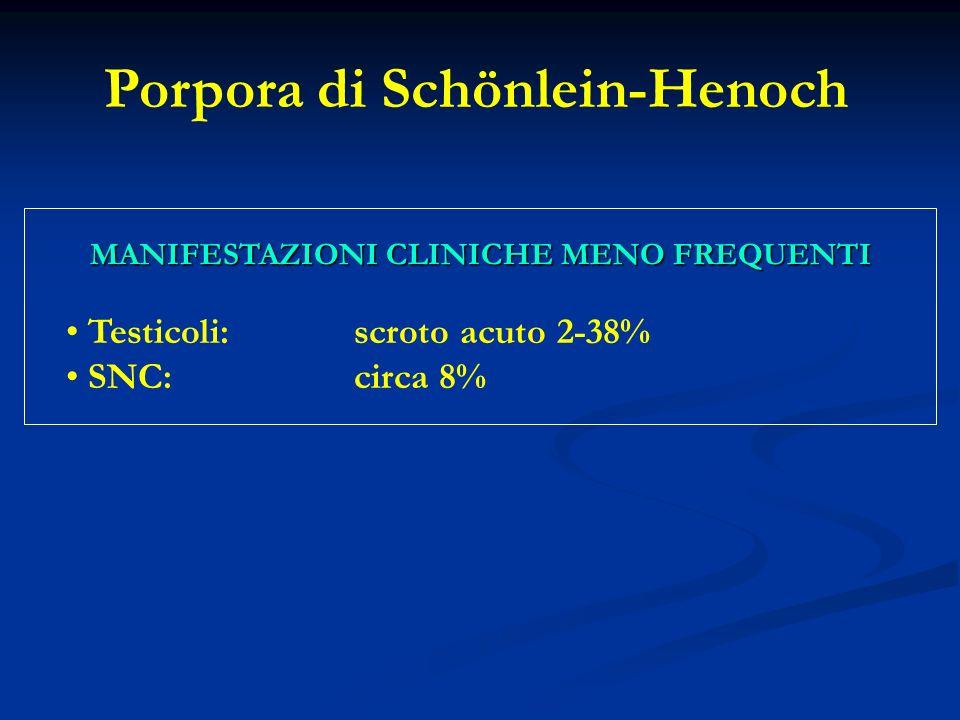 Testicoli:scroto acuto 2-38% SNC:circa 8% MANIFESTAZIONI CLINICHE MENO FREQUENTI Porpora di Schönlein-Henoch
