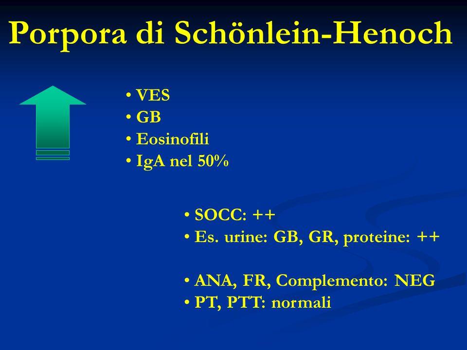VES GB Eosinofili IgA nel 50% SOCC: ++ Es.