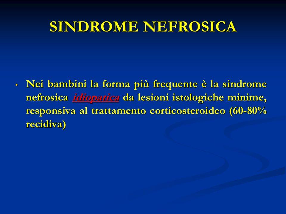SINDROME NEFROSICA Nei bambini la forma più frequente è la sindrome nefrosica idiopatica da lesioni istologiche minime, responsiva al trattamento corticosteroideo (60-80% recidiva) Nei bambini la forma più frequente è la sindrome nefrosica idiopatica da lesioni istologiche minime, responsiva al trattamento corticosteroideo (60-80% recidiva)