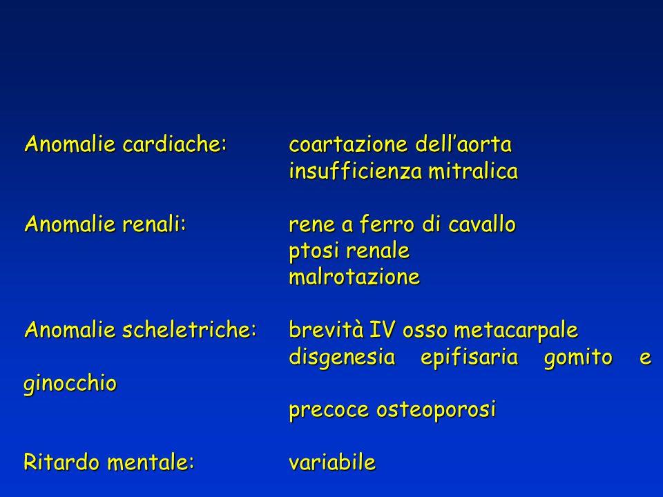 Anomalie cardiache:coartazione dellaorta insufficienza mitralica Anomalie renali:rene a ferro di cavallo ptosi renale malrotazione Anomalie scheletric