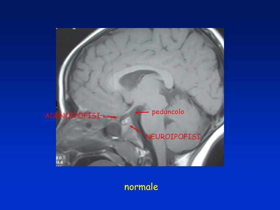 NEUROIPOFISI ADENOIPOFISI peduncolo normale