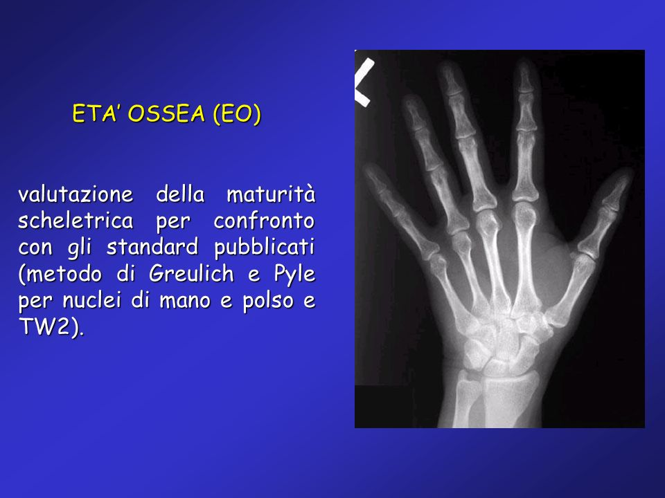 ETA OSSEA (EO) valutazione della maturità scheletrica per confronto con gli standard pubblicati (metodo di Greulich e Pyle per nuclei di mano e polso