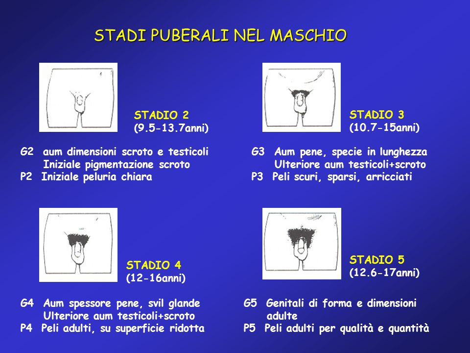 STADI PUBERALI NEL MASCHIO G2 aum dimensioni scroto e testicoli Iniziale pigmentazione scroto P2 Iniziale peluria chiara STADIO 2 (9.5-13.7anni) G3 Au