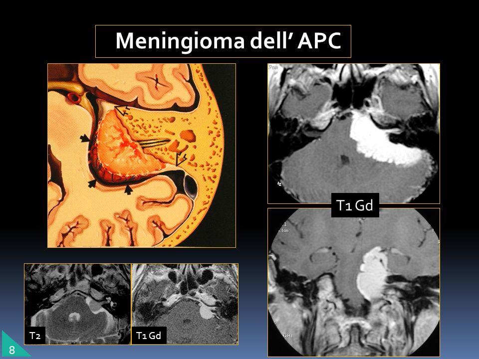 Meningioma dell APC 8 T1 Gd T2