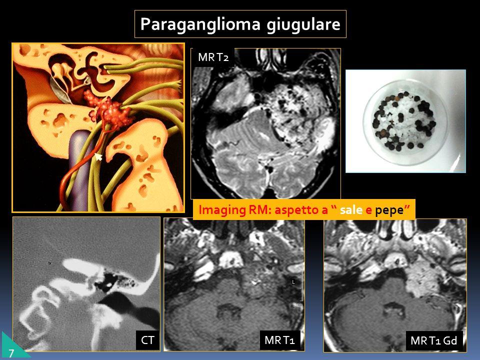 giugulare Paraganglioma giugulare Imaging RM: aspetto a sale e pepe 7 MR T2 MR T1 MR T1 Gd CT