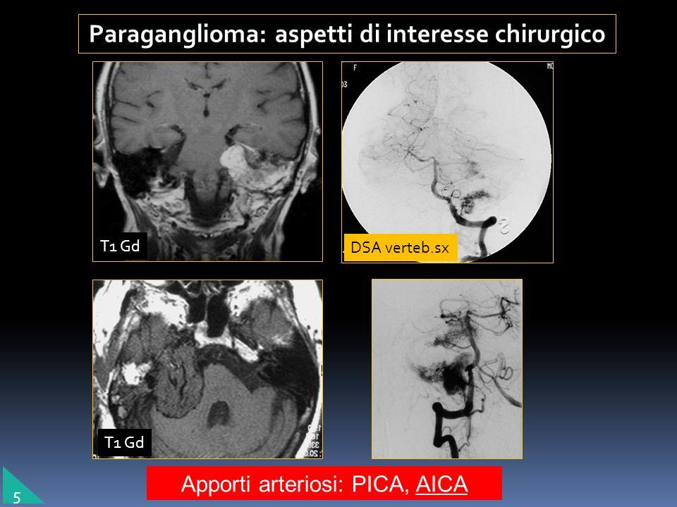 Lesioni espansive dell osso temporale Paraganglioma: aspetti di interesse chirurgico Estensione transdurale Estensione transdurale Apporti arteriosi: