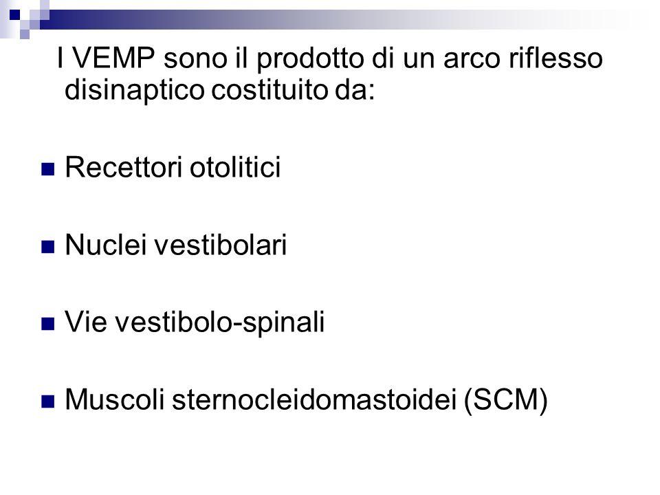 I VEMP sono il prodotto di un arco riflesso disinaptico costituito da: Recettori otolitici Nuclei vestibolari Vie vestibolo-spinali Muscoli sternoclei