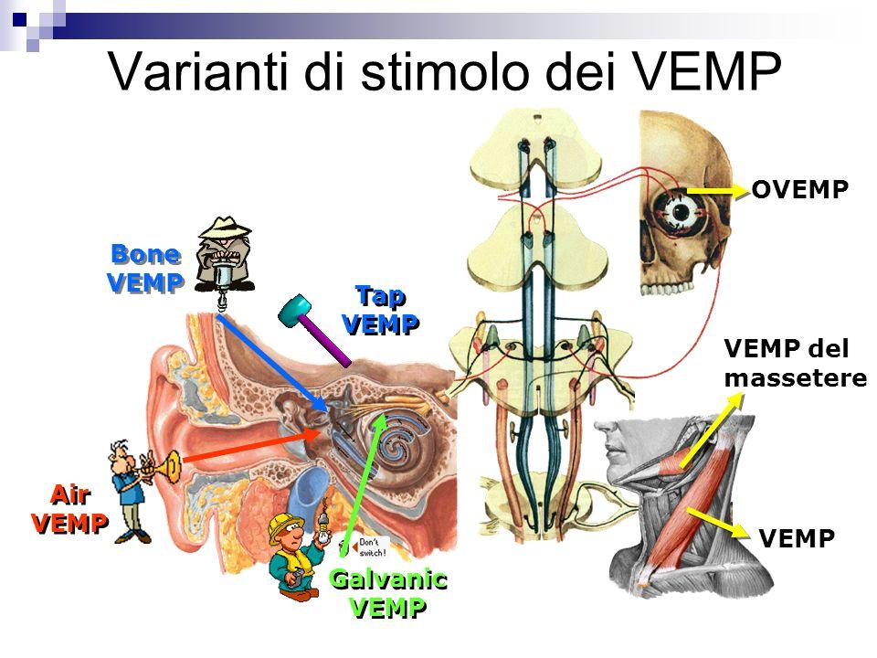 Varianti di stimolo dei VEMP Air VEMP Bone VEMP Tap VEMP Galvanic VEMP VEMP VEMP del massetere OVEMP
