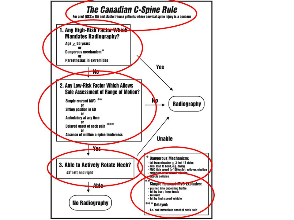 Canadian C-Spine Rule e NICE