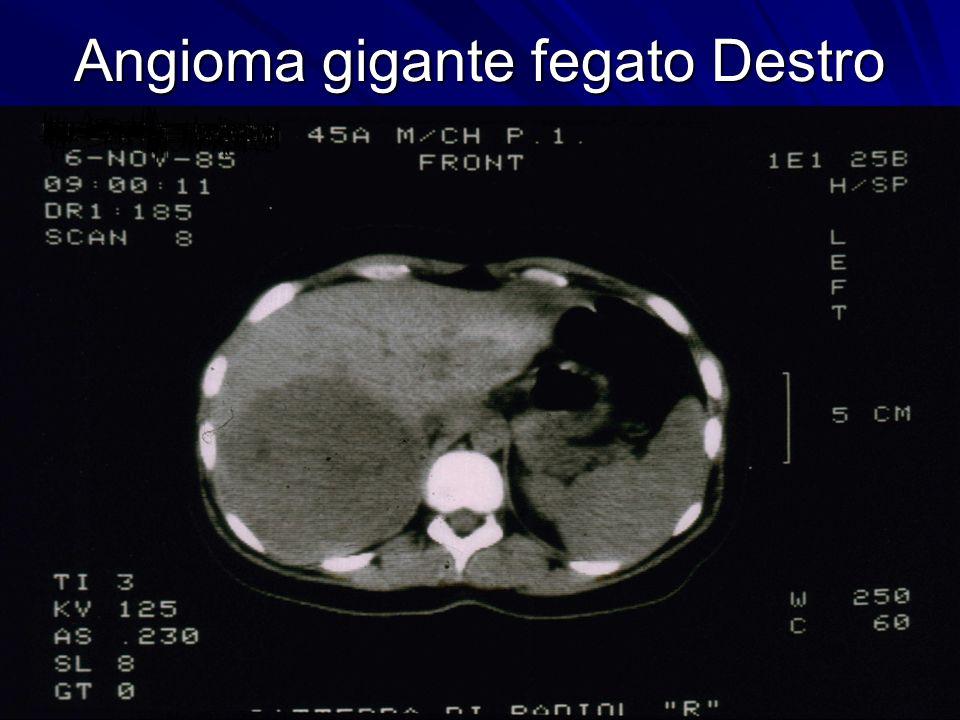 Angioma gigante fegato Destro