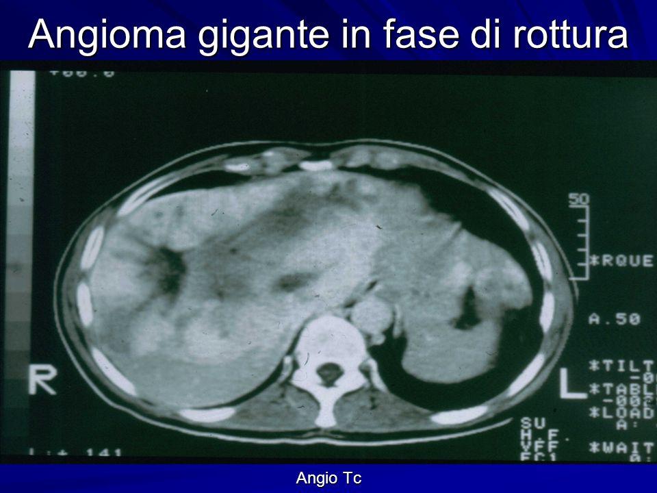 Angioma gigante in fase di rottura Serie angiografica
