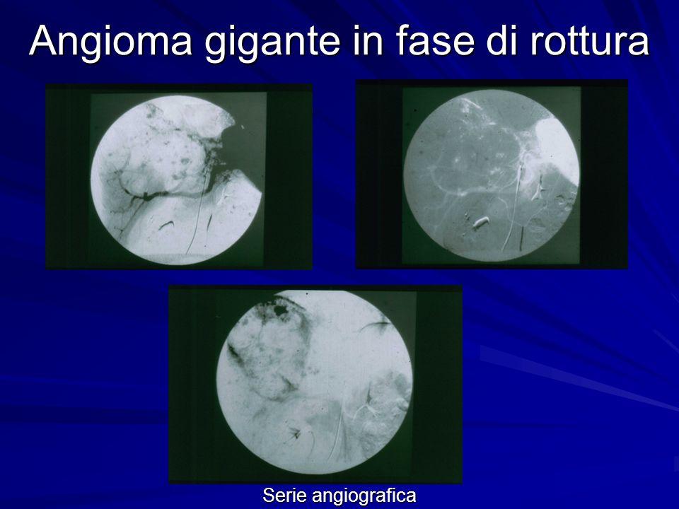 Angioma gigante in fase di rottura Epatectomia destra