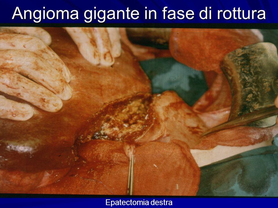 Angioma gigante in fase di rottura Fegato destro megalico e deformato dal voluminoso angioma