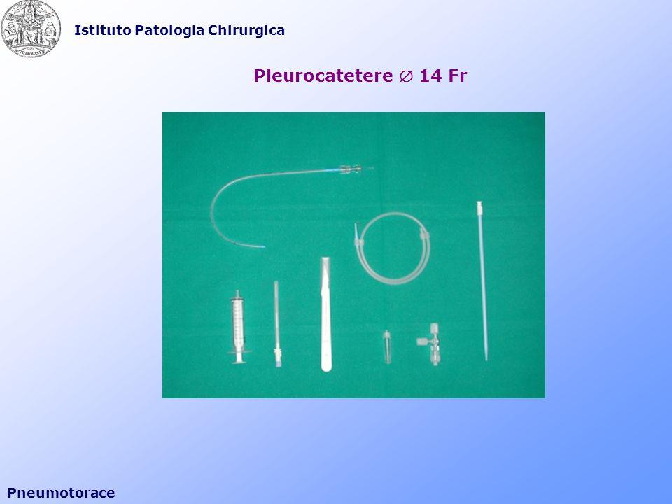 Istituto Patologia Chirurgica Pneumotorace Pleurocatetere 14 Fr