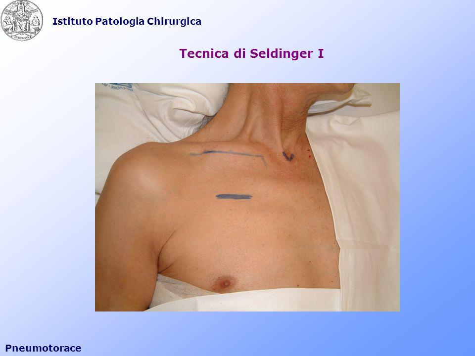 Istituto Patologia Chirurgica Pneumotorace Tecnica di Seldinger I