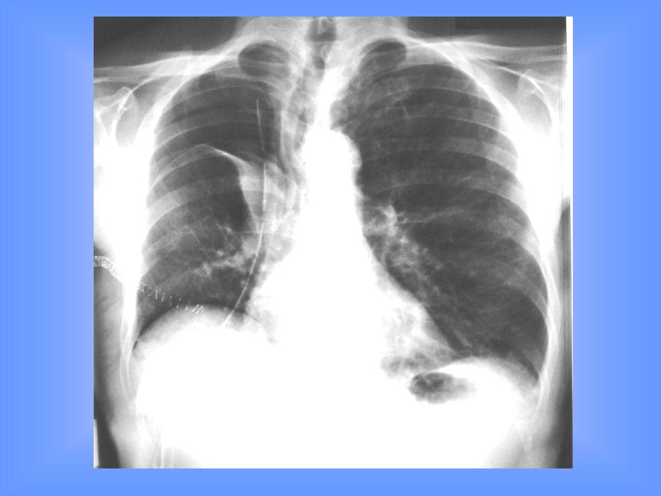 Istituto Patologia Chirurgica Pneumotorace Definizione : presenza di aria nel cavo pleurico con collasso di entità variabile del polmone.