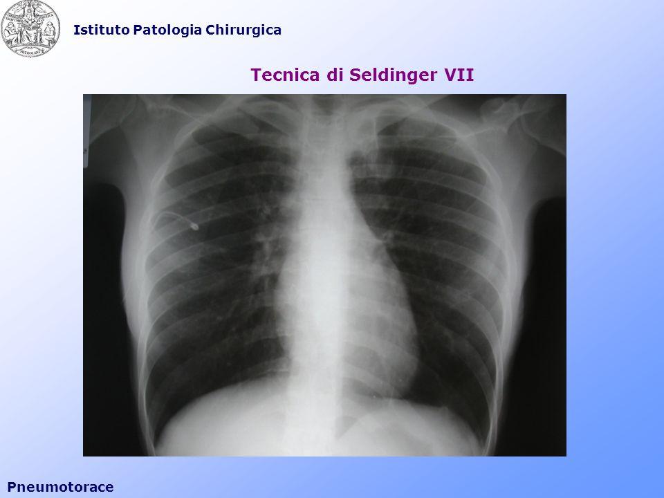 Istituto Patologia Chirurgica Pneumotorace Tecnica di Seldinger VII