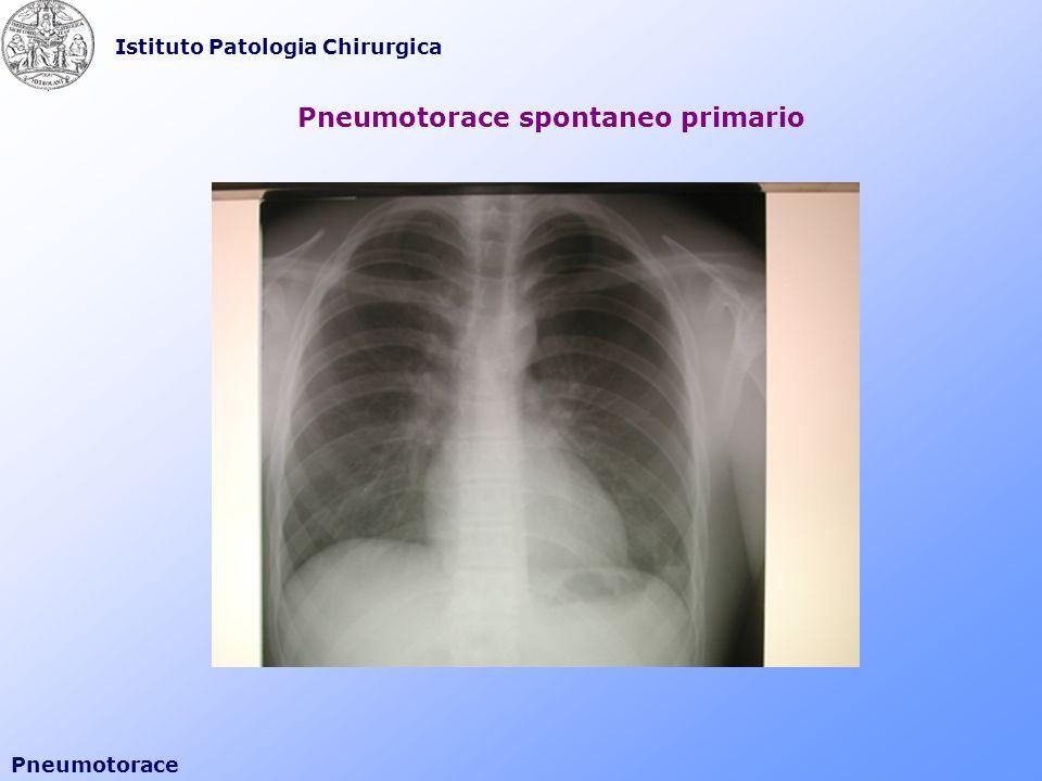 Istituto Patologia Chirurgica Pneumotorace Pneumotorace spontaneo primario