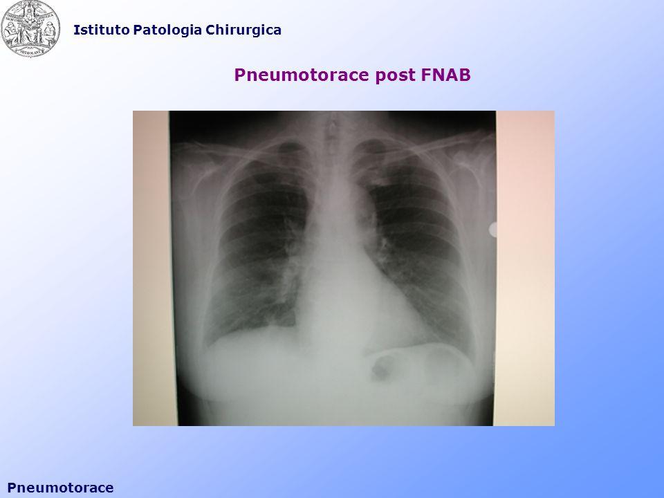 Istituto Patologia Chirurgica Pneumotorace Tecnica di Seldinger V