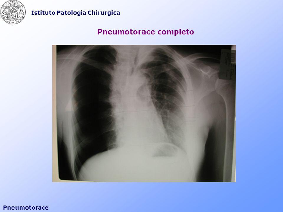 Istituto Patologia Chirurgica Pneumotorace Tecnica di Seldinger VI