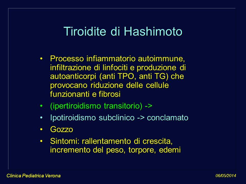 06/05/2014 Clinica Pediatrica Verona Tiroidite di Hashimoto Processo infiammatorio autoimmune, infiltrazione di linfociti e produzione di autoanticorp